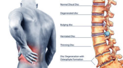 Non-Surgical Spinal Decompression Therapy